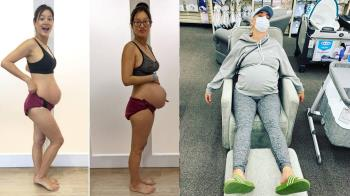 妊娠紋是戰鬥勳章!Janet、凱蒂佩瑞「產後凸肚照」萬人感動淚崩:花十個月創下生命先別對自己太嚴苛