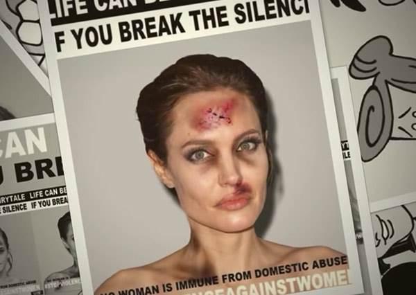 艾瑪華森、裘莉都被揍到鼻青臉腫!好萊塢明星家暴圖悄悄在網路瘋傳,背後用意其實很偉大?