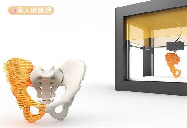 骨盆腫瘤移除新突破!3D列印更精準、少出血風險