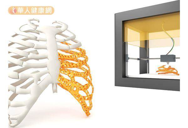 肋骨骨折,呼吸都會痛〜3D列印輔助新突破