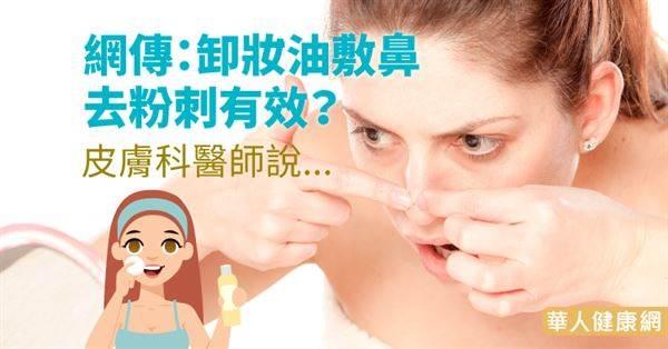 網傳:卸妝油敷鼻「可溶出粉刺」?皮膚科醫師:首先要搞懂…