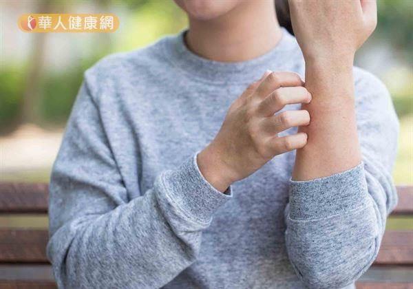 一到冬天就會抓不停?中醫博士教你4招輕鬆告別乾燥搔癢,找回水潤Q彈肌!