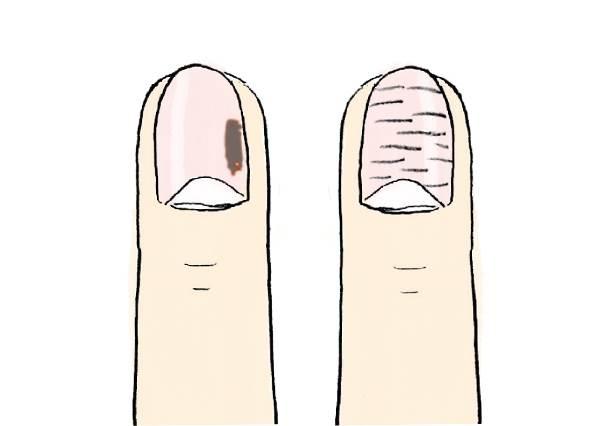 浮現黑色根本一級警戒?從「指甲外觀」檢測身體健康狀態:出現這種條紋就是在叫你睡好睡滿啦!