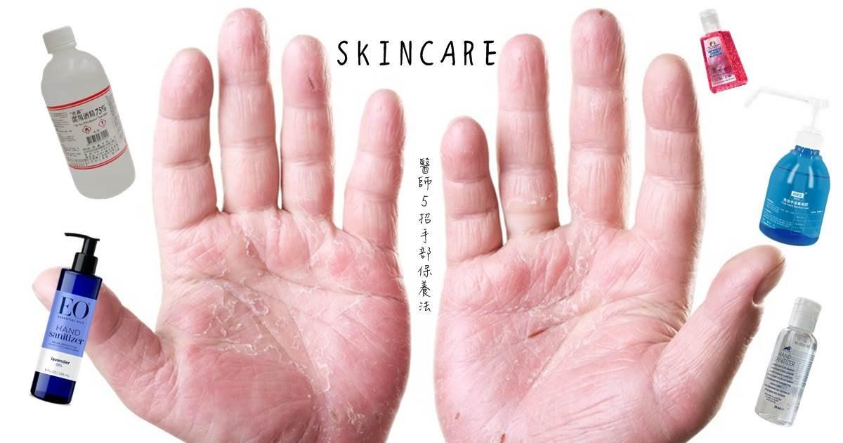 常洗手、酒精消毒導致富貴手?醫師「5招保養法」舒緩手部濕疹,乾裂癢狀況也能一起預防!