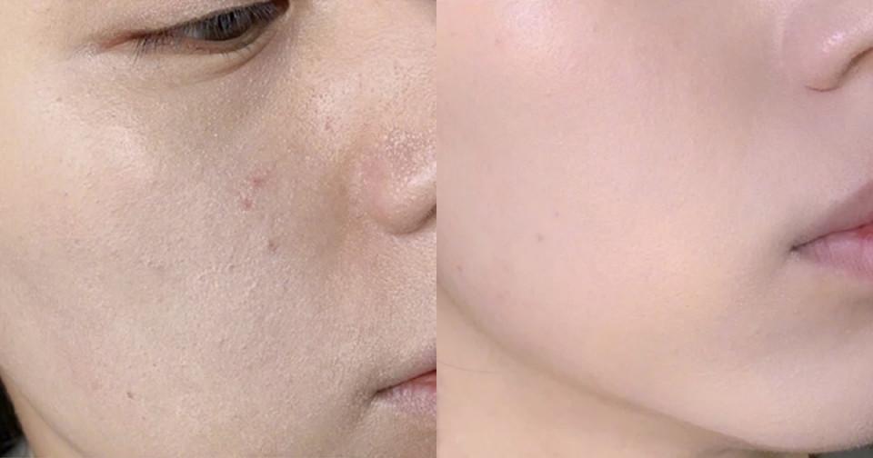 肌膚不穩定上妝TIPS 1:上妝前噴化妝水/濕海綿吸油