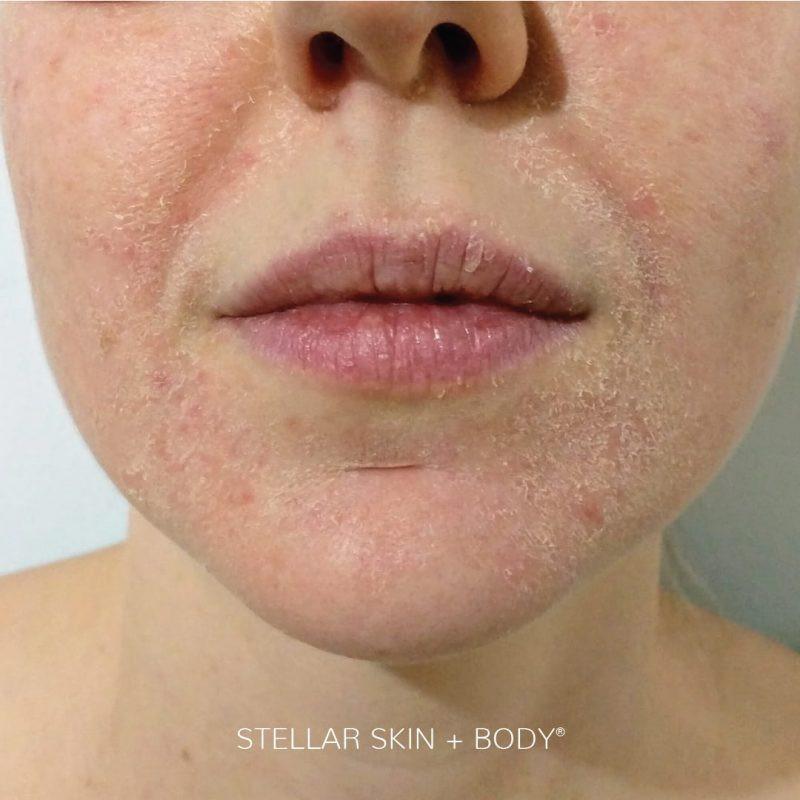 戴口罩易引發肌膚問題1:長痘痘、黑頭