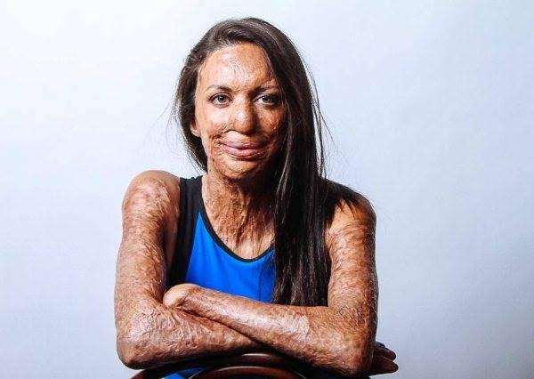 正妹遭烈火紋身,65%嚴重燒傷、顏面全損,但她活的比普通人還更精彩!